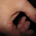 20141230Sharp Knife Effects